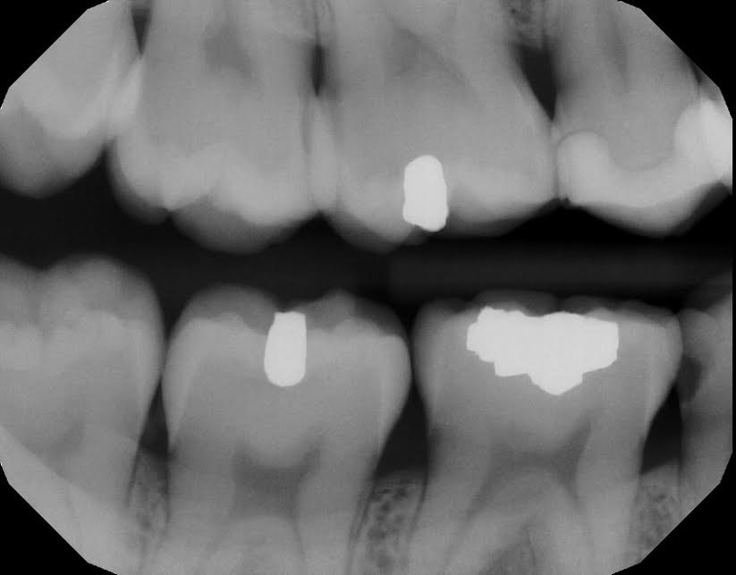 Do I really need a root canal? Or can I just extract it? (vs