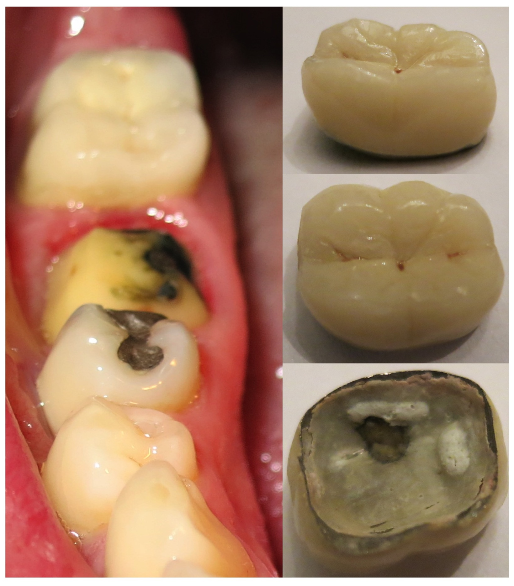 Crown came loose, bad smell: is crown good or bad? (teeth