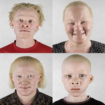 external image 46009d1248714549-why-there-racism-5722_albinos-black-people.jpg