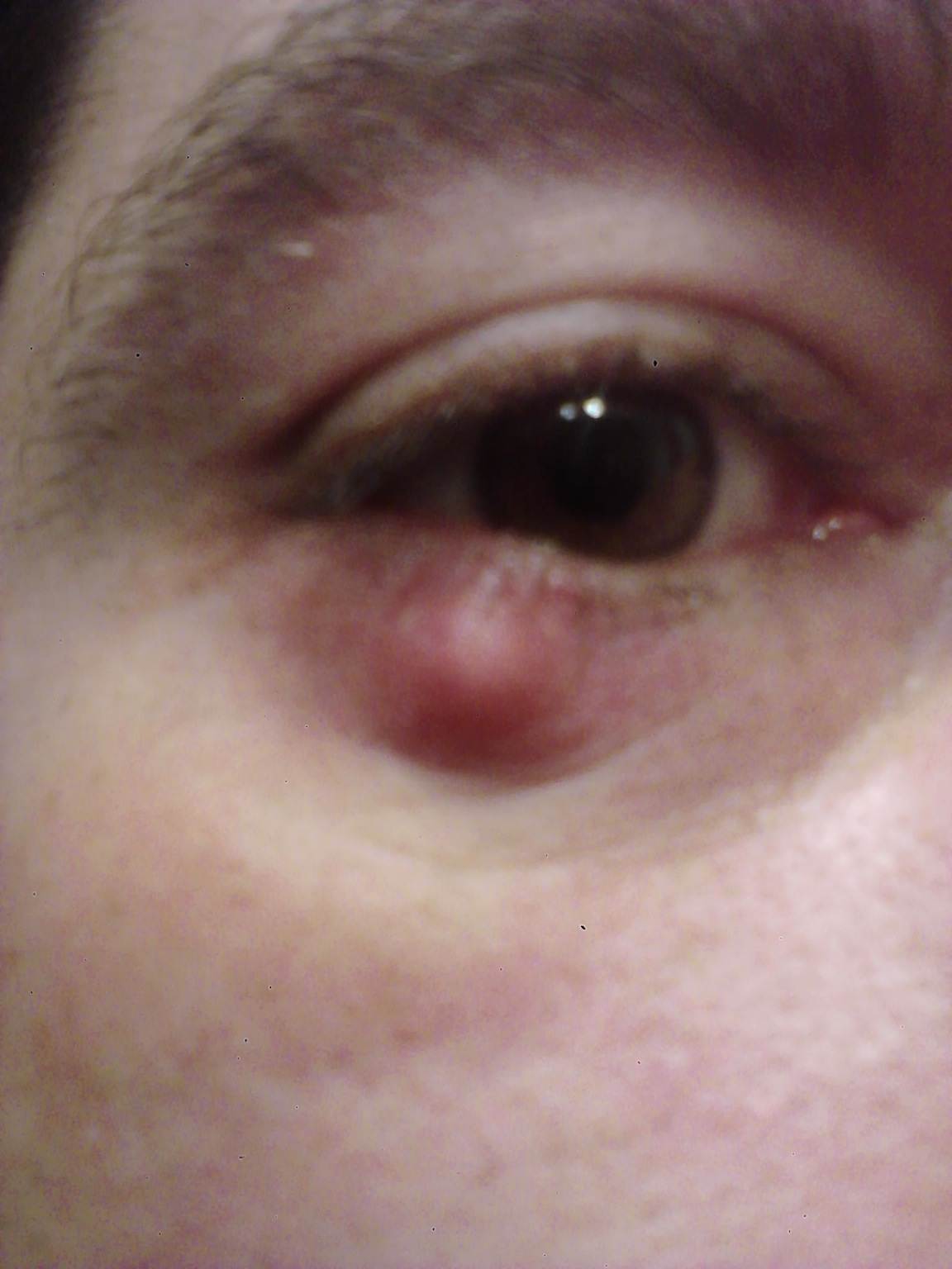 Sty on lower eyelid; need advice   health and wellness  doctors ...