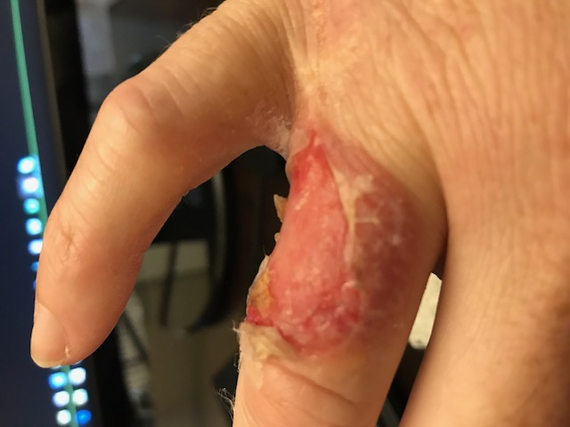 Images of staph infection on hand