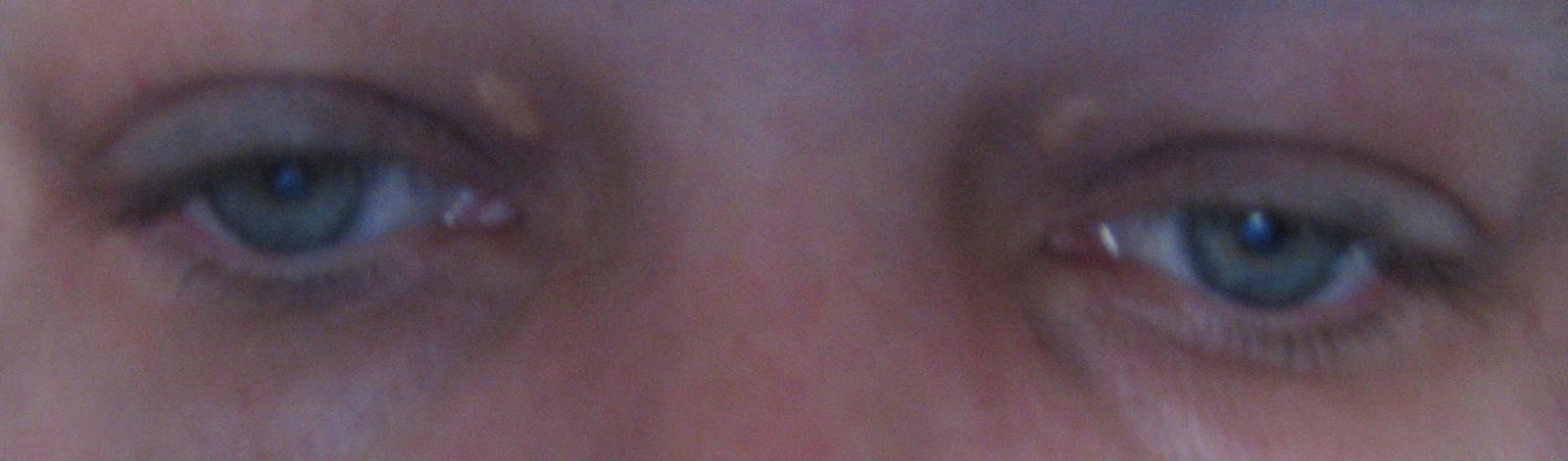 White spots above eye lids?? Anyone Know what causes this