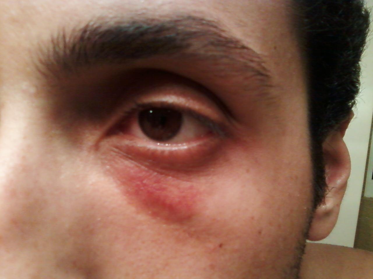 Ringworm, Facial (Tinea Faciei) - skinsight