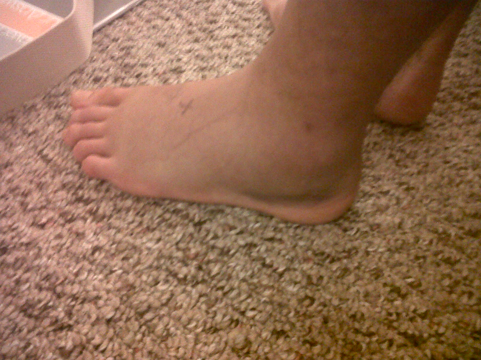 After A Tibial Fracture D Fractured Tibia Fibula Broken Lower Leg Img