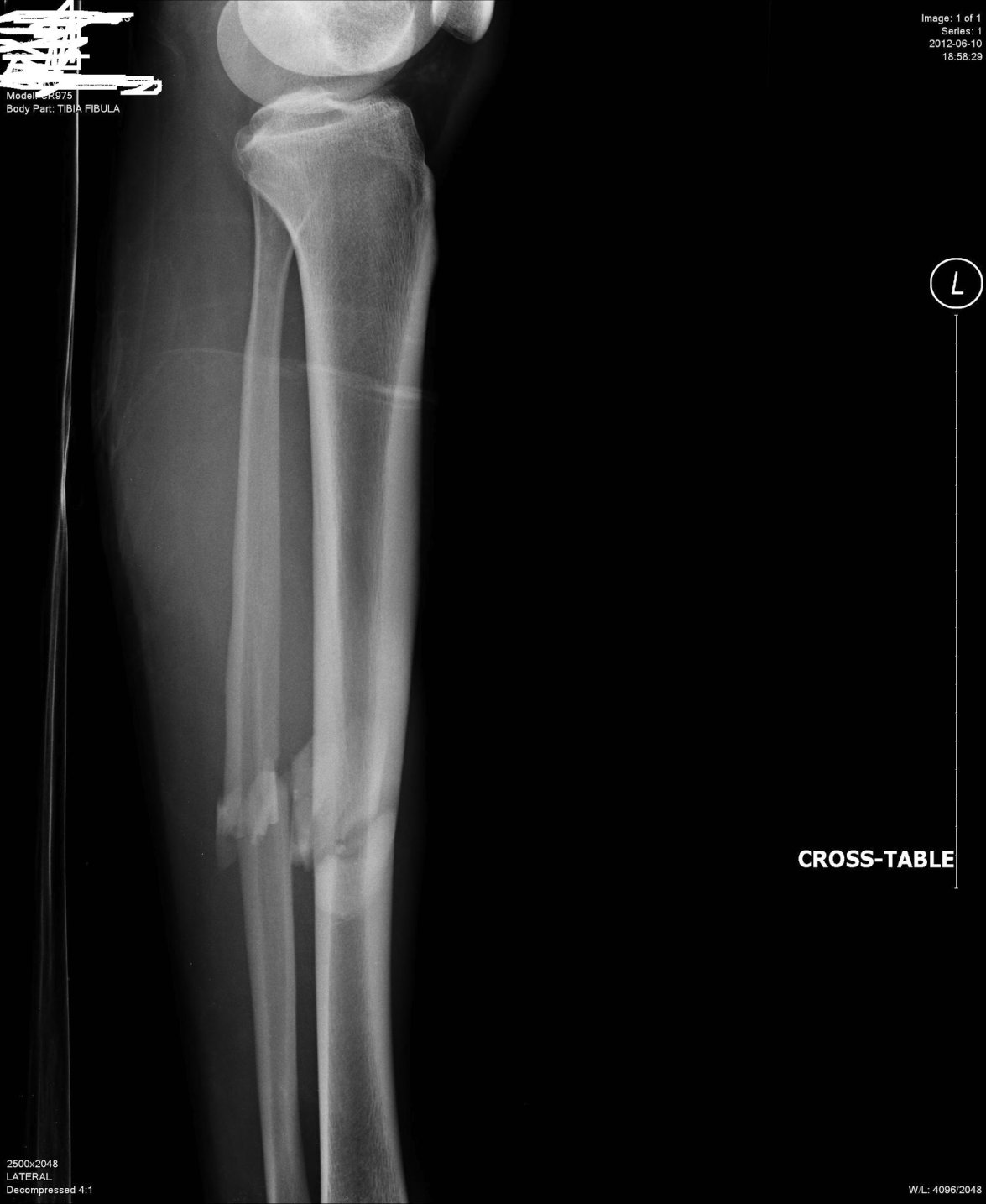 Fractured Tibia and Fibula (Broken Lower Leg Bones) with
