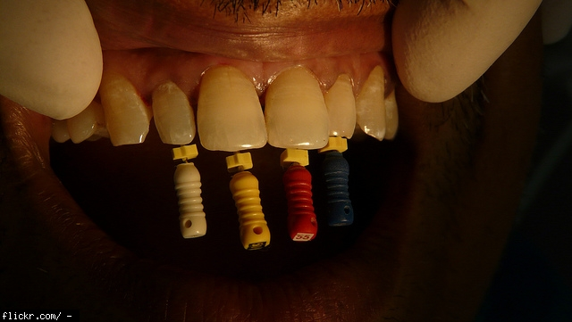 How much does root canal treatment cost?