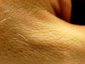 Sebaceous Cyst Removal (do it yourself) (swelling, symptom, peroxide
