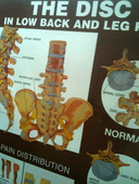 The Disc Low Back Leg Pain