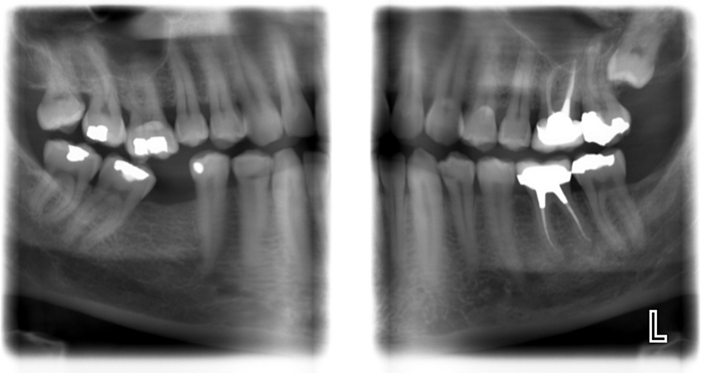 X-ray review (teeth, dentist, cavity, filling) - Dental ...