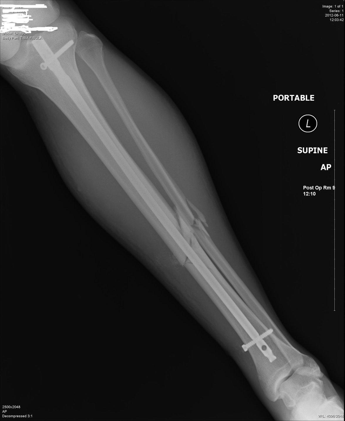 Fractured Tibia and Fibula (Broken Lower Leg Bones) with ...